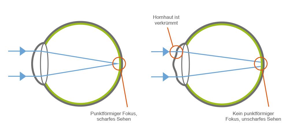 Anatomie des Auges bei Astigmatismus